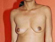 seins asiatique